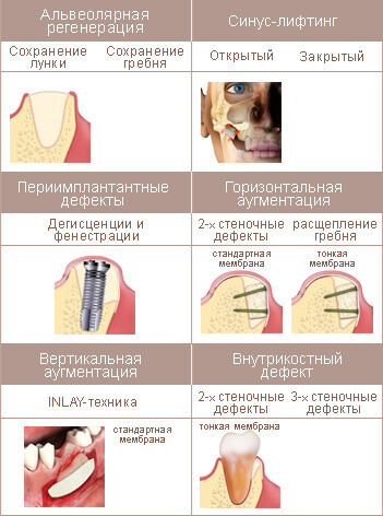 Использование OsteoBiol Evolution